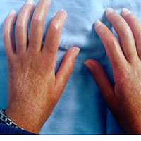 како да се ослободите Дупуитрен болести