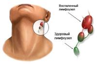 Lymphadenitis acute or chronic
