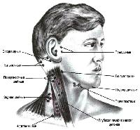 Ikke alle hævede lymfeknuder tyder lymfadenitis