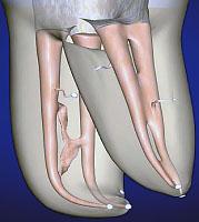 Pulpitis temporary milk teeth