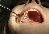 przewlekłe średnim próchnicy opcji zniszczenie tkanek zęba