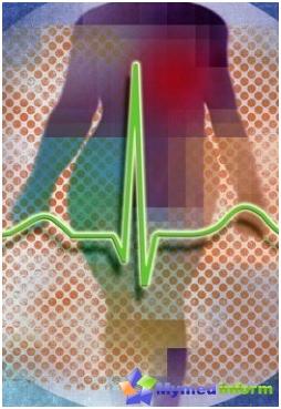 Arrhythmie, Bradykardie, Kardiogramm, Herz, Herzklopfen