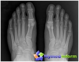 Рентгенова снимка на краката