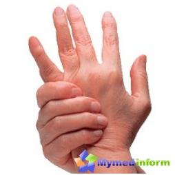 treatment-arthritis