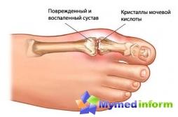 ставни заболявания, крака, отлагане на сол, подагра, стави