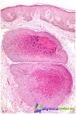 Dermatología, inmunidad, enfermedades de la piel, moluscos de contabilidad