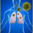 treatment-pneumonia