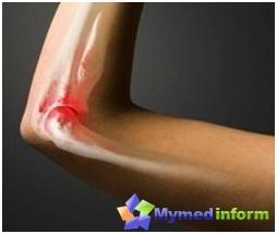 treatment-rheumatism