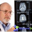 treatment-stroke