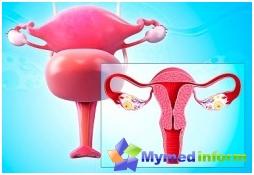 الأمراض، أمراض النساء، أمراض الإناث، المرأة، الرحم فيبروما