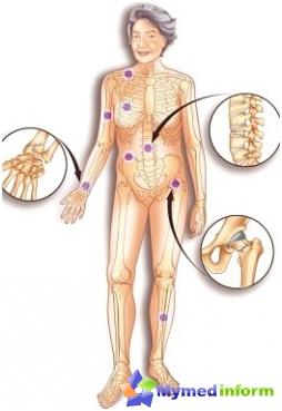 الأمراض، الكالسيوم، العظام، هشاشة العظام، العمود الفقري
