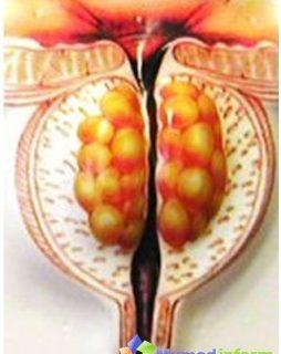 cure-prostate