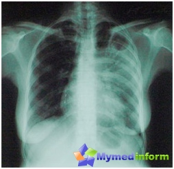 X-RAY لقطة من المريض مع السل