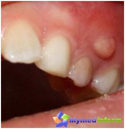 cyst-tooth