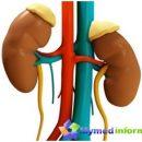diseases-kidney