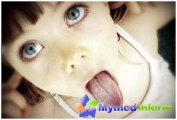 възпаление, глосит, стоматология, език