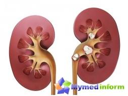 kidney-stones-folk-remedies