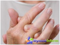 أمراض المفاصل، وعلاج المفاصل، والمفاصل، ومفاصل الأزمة