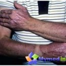 lyells-syndrome