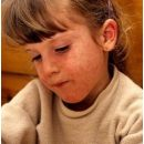 measles-children