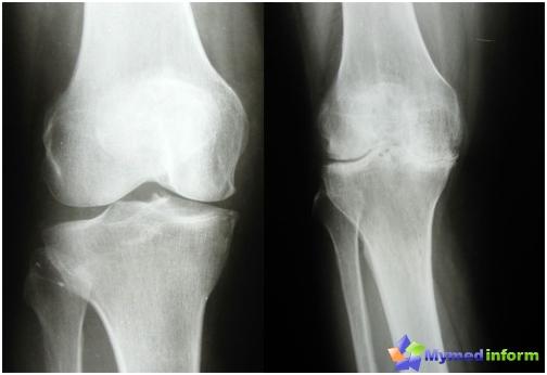 Артроза на колянната става в ранния (ляв) и късния (десен) стадий на заболяването