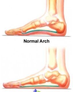 prevention-flatfoot