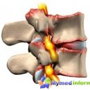 protrusion-intervertebral-discs