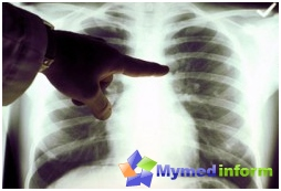 Lung diseases, breathing, lungs, lung emphysema