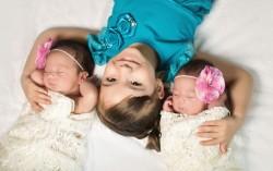 الحمل، التوائم، التوائم، conception، الحمل المتعدد