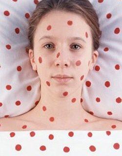 rubella-during-pregnancy