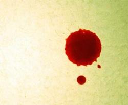 bleeding-during-pregnancy
