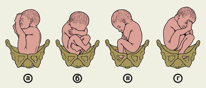 ما تحتاج لمعرفته حول الولادة