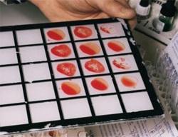 Преди даряването трябва да се вземе кръв за изследвания