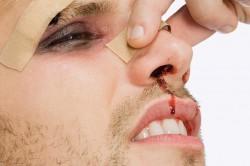 изкривяване на преградата, носа, носната преграда, фрактури
