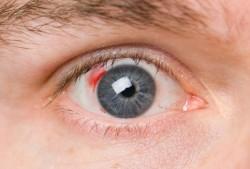 очи, кръвоизлив в окото, офталмология, кръвоносни съдове