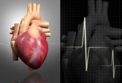heart-bypass-surgery