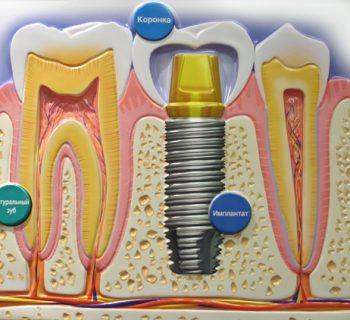 implantation-tooth