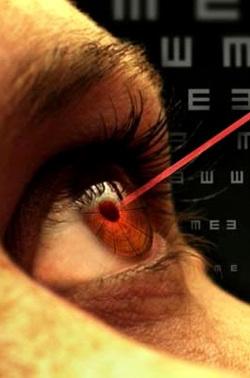 تصحيح رؤية الليزر