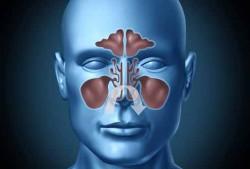 nasal-lavage