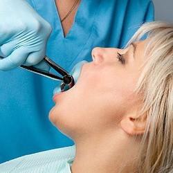 зъб на мъдростта, зъбобол, зъби, никнене на зъби, стоматология