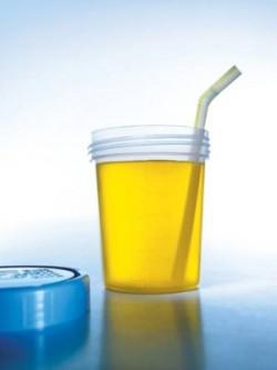 урина, традиционна медицина, урина, терапия с урина