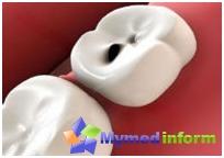 Класификация на зъбния кариес: потенциален успех на лечението