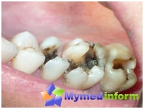 classification of dental caries by Black irreplaceable in the diagnosis