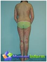 psoriasis, a disease of civilization