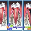 stage caries depth of the pathological process