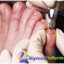 What is an ingrown nail
