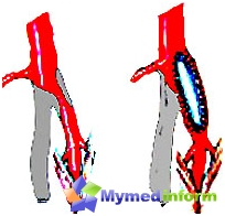 Операции при лезии на артериите на подбедрицата и бедрото