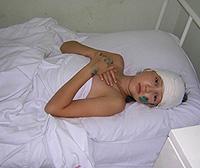 brain contusion symptoms and treatment