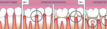 5 of 6 teeth we lose not from caries