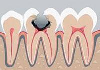 etiology and pathogenesis of dental caries key to understanding